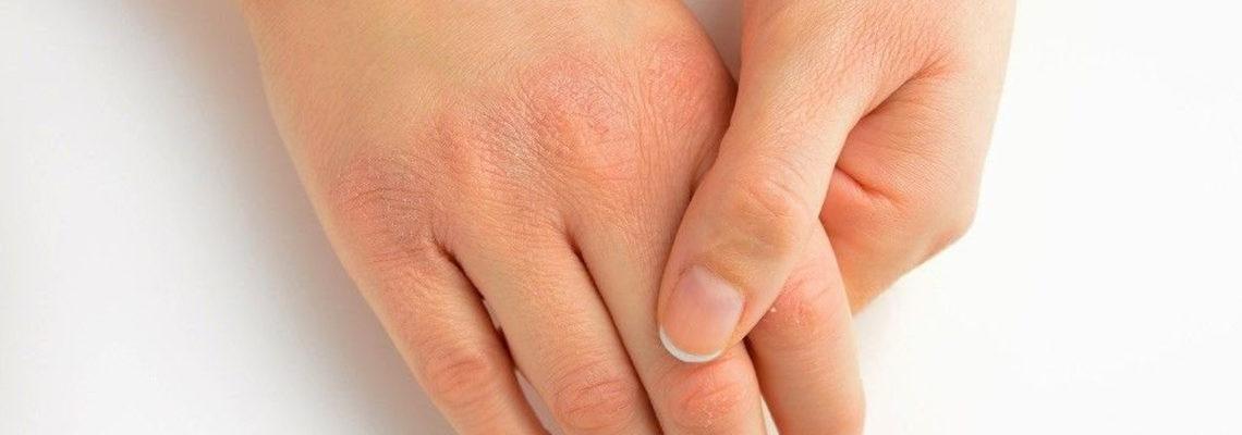 crevasses sur les mains
